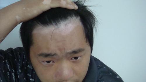 北京治疗白癜风医院:男性白癜风的发病原因